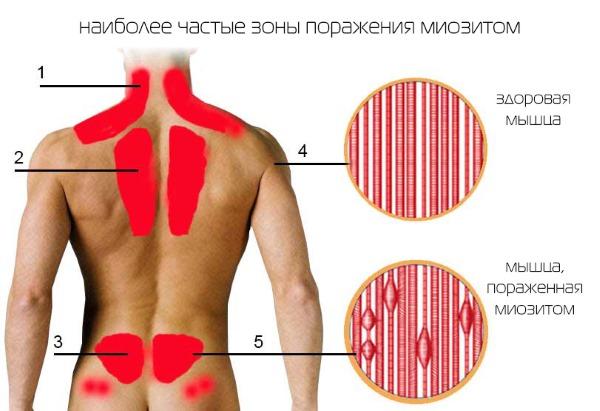 Боль в икрах ног: причины при ОРВИ, после сна, при ходьбе. Лечение народными средствами, мази