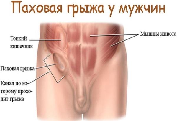 Боль внизу живота у мужчин: локализация, причины, симптомы. Диагностика и варианты лечения