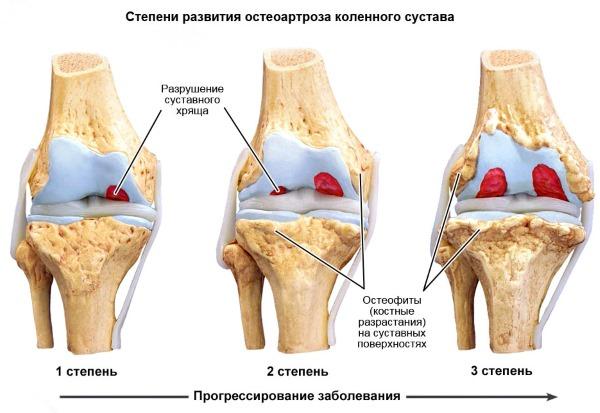 Болят суставы рук и ног. Что делать, к какому врачу обратиться? Причины, симптомы, лечение народными и медикаментозными средствами
