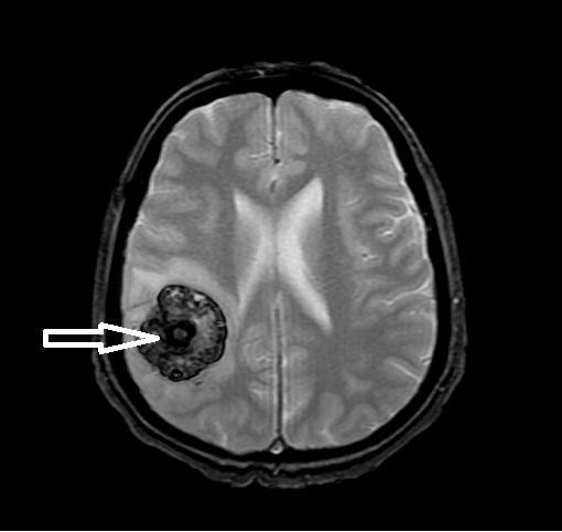 Гемангиома у новорожденных. Причины возникновения, лечение на спине, веке, голове, при синдроме Казабах-Меррит