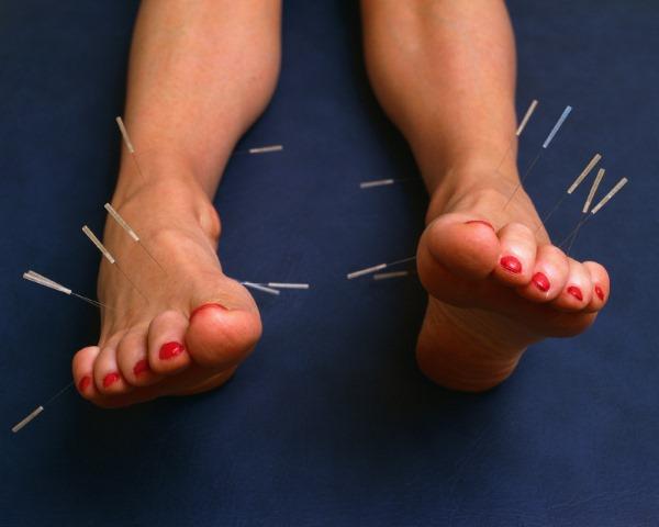 Иглоукалывание. Польза и вред, показания и противопоказания, особенности проведения процедуры. Отзывы врачей и пациентов