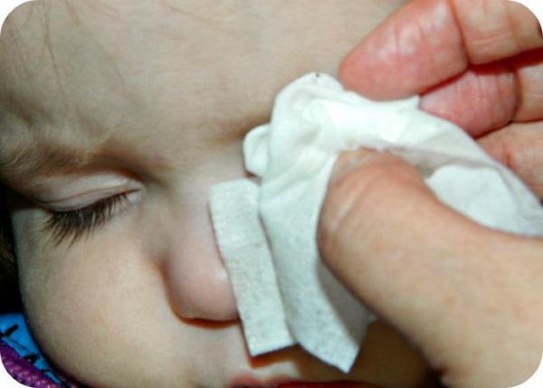 Конъюнктивит у детей: виды, симптомы, признаки. Лечение медикаментозными препаратами и народными средствами