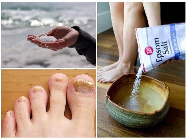 Народные средства от грибка на ногах между пальцами: уксус и яйцо, хозяйственное мыло, прополис, перекись, сода, чистотел