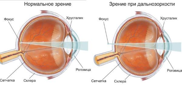 Операция на глаза: лазером по замене хрусталика, отслоении сетчатки, катаракта, глаукома, для улучшения зрения. Стоимость, послеоперационный период, последствия