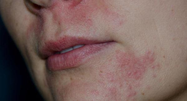 Атопический дерматит при беременности: лечение, обострение