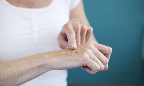 Пигментные пятна на руках: причины и лечение, как избавиться в домашних условиях