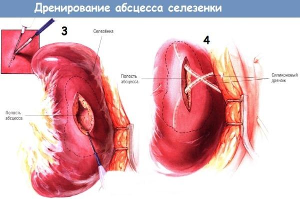 Селезенка: где находится и как болит. Симптомы и причины болей, первая помощь, особенности лечения