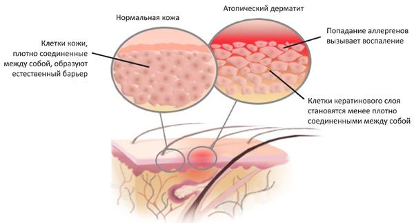 Сыпь на теле у ребенка. Фото с пояснениями: в виде прыщиков, мелкая, чешется, красная, без температуры, зуд, аллергическая. Что это может быть