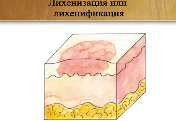 Целестодерм крем и мазь. Показания, противопоказания, инструкция по применению, цена, отзывы, аналоги