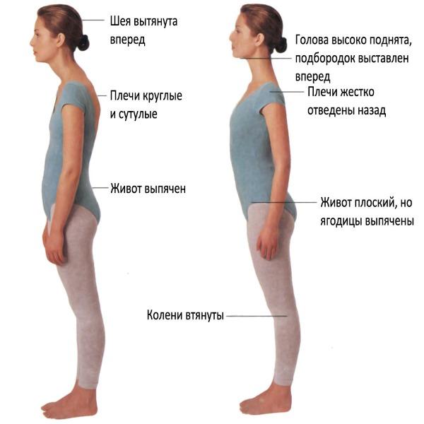 Упражнения для осанки. Правильная гимнастика для детей, взрослых, виды спорта. Как исправить осанку, выпрямить спину в домашних условиях