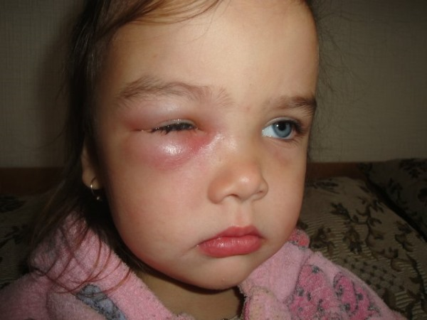 Ячмень на глазу у ребенка. Чем, как лечить быстро дома, фото, как выглядит внутренний, причины появления