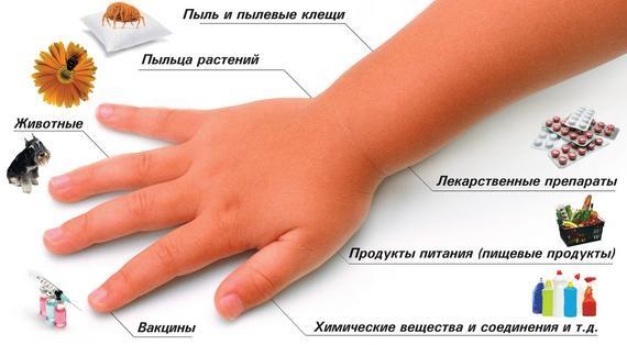 Зодак. Инструкция по применению капель для детей, сколько принимать от аллергии. Цена, отзывы, аналоги