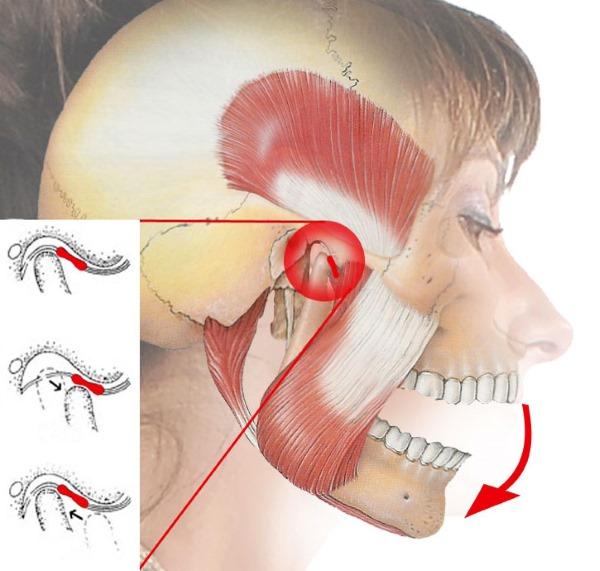 Головные боли при климаксе у женщин симптомы что делать как лечить