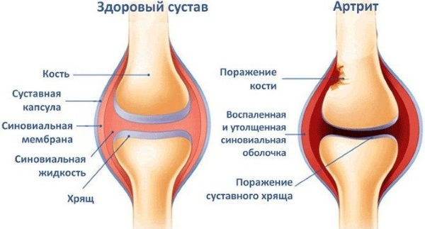 Бриония гомеопатия: показания к применению, инструкция. Как применять для детей и взрослых