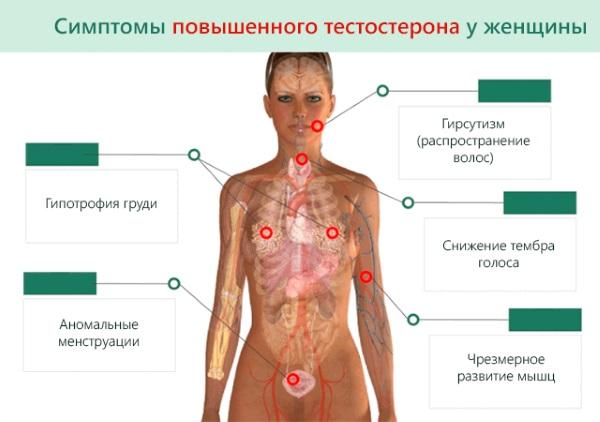Дигидротестостерон. Норма, почему повышен у женщин, мужчин. Причины, симптомы, анализы на гормон, лечение народными средствами, препараты