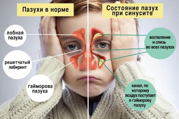 Этмоидит: симптомы и лечение. Хронический, острый, полипозный, катаральный, двусторонний. Как лечить заболевание головного мозга