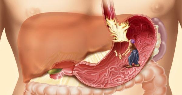 Изжога. Причины и лечение народными средствами, таблетками. Как избавиться при беременности, питание в домашних условиях