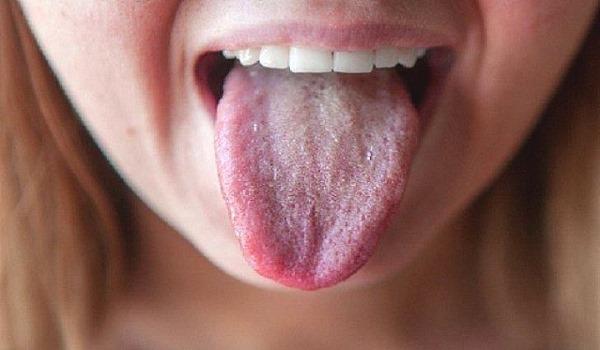 Колит кишечника. Симптомы, причины, диагностика и лечение у женщин