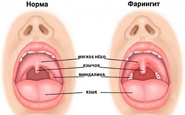 Комок в горле: причины и лечение. Боль в грудной клетке, отрыжка после еды. Как избавиться, народные средства
