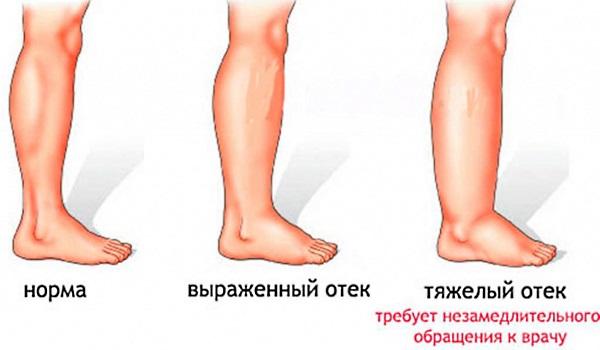 Лечение лимфостаза нижних конечностей в домашних условиях народными средствами, медикаментозно, упражнениями, массажем, диетой
