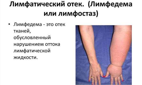 limfostaz nizhnih konechnostey lechenie 7 - Lymphatic flow disorders in the legs symptoms