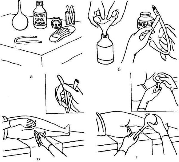 Эффективные средства от запора у взрослых: народные, гимнастика, лекарства, клизма, массаж