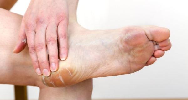 Натоптыши на ногах. Лечение, как быстро избавиться народными средствами, мазь, пластырь, удаление лазером