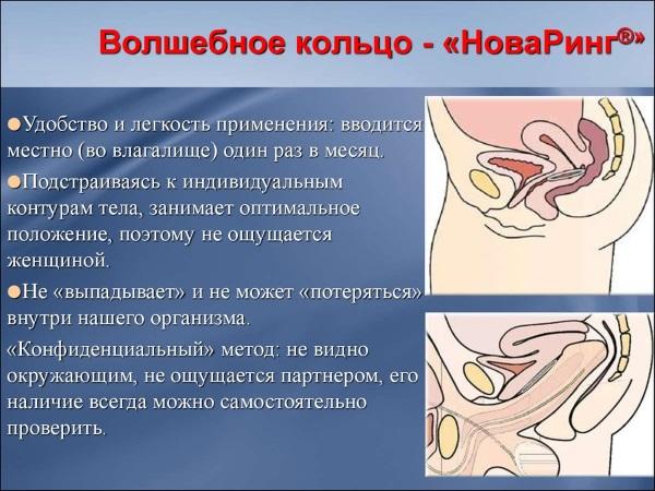 Кольцо Нова Ринг. Противозачаточный контрацептив. Инструкция по применению, цена, отзывы, побочные эффекты