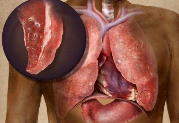 Омега 3 жирные кислоты. Инструкция по применению для женщин, детей и мужчин. Витамины Доппельгерц, Солгар, Витрум кардио, Орифлейм. Описание и отзывы