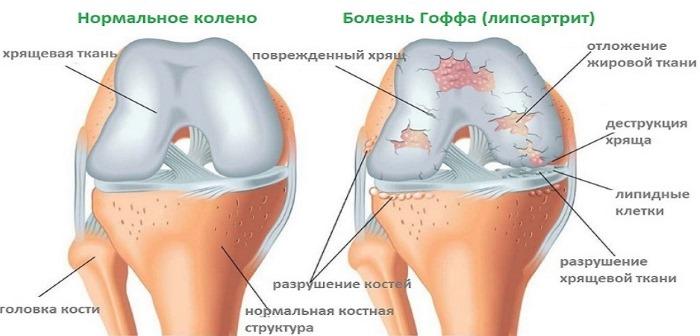 Острая боль в колене при ходьбе, сгибании и разгибании, вставании, спуске с лестницы. Причины, первая помощь, лечение