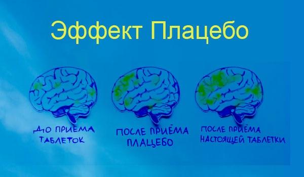 Плацебо эффект: что это такое, список препаратов, метод плацебо наоборот