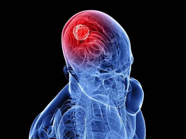 Причины сильной боли в голове, тошноты, если давит в лобной, затылочной части, висках. Что делать