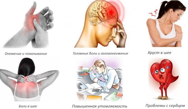 Шейный остеохондроз. Симптомы и лечение в домашних условиях. Упражнения, гимнастика, массаж, уколы, таблетки, мази