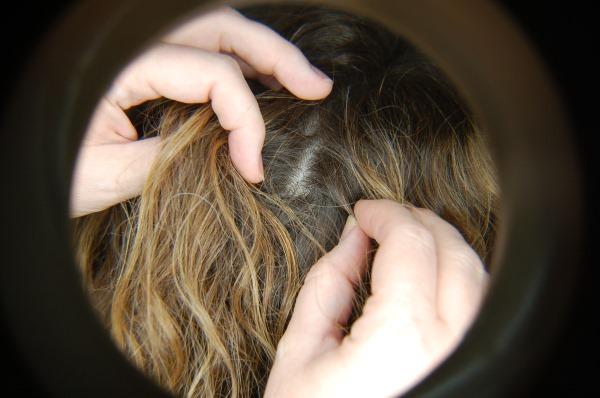 Шишка на голове. Что это может быть, если сзади, под кожей не болит, твердая на затылке. Причины, как избавиться, к какому врачу обращаться