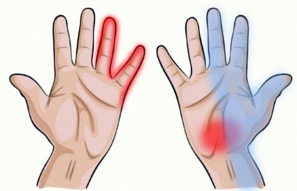 Стафизагрия гомеопатия. Показания к применению, инструкция 6, 12, 30, 200, 1000. Описание препарата
