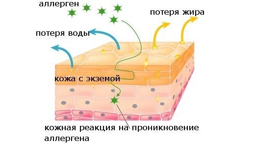 Стрептодермия у взрослых. Cимптомы и лечение, инкубационный период. Мази, антибиотики, народные средства
