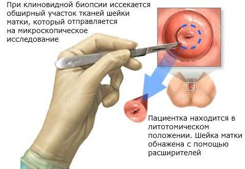 Сургитрон - что это такое, суть методики, применение аппарата в косметологии, гинекологии, лечение эрозия шейки матки, геморроя, удаление родинок