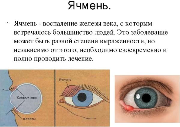 Чем лечить ячмень на глазу, на нижнем, верхнем веке, быстро в домашних условиях