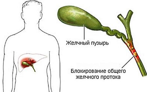 Желчный пузырь. Симптомы заболеваний, диагностика и лечение. Препараты, народные средства, диета