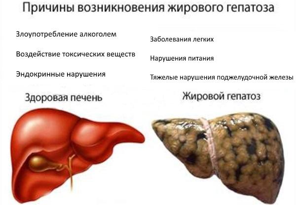 Жировой гепатоз печени. Симптомы и лечение медикаментозное, народными средствами, диета