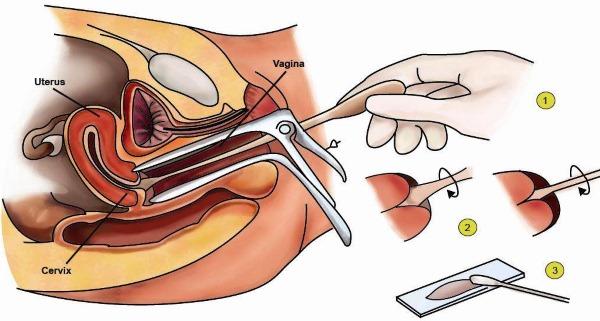 Анализ на цитологию в гинекологии. Что это значит, какие заболевания показывает. Чем отличается от мазка на онкомаркер, сколько делается. Расшифровка