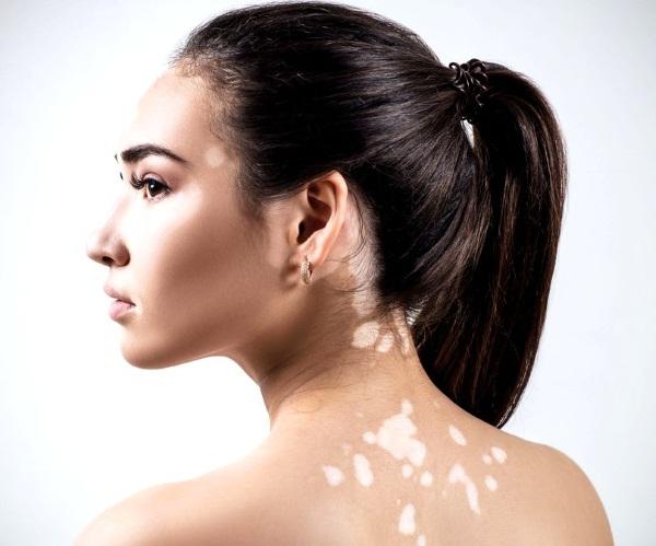 Белые пятна на спине появились: фото чем лечить после загара кожи