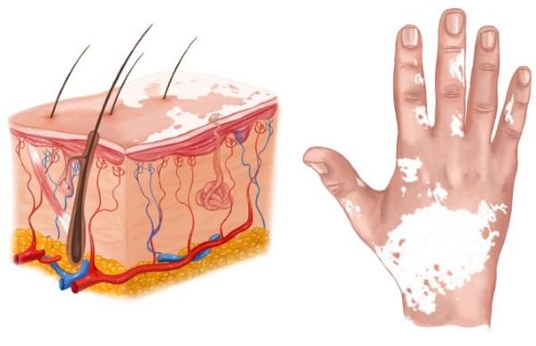 Белые пятна на теле. Причины и лечение, как избавиться народными средствами