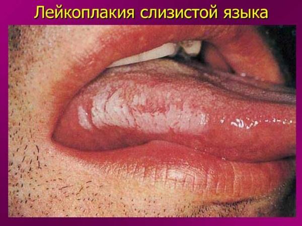Белый язык у взрослого. Причины и лечение народными средствами. Симптомы, признаки