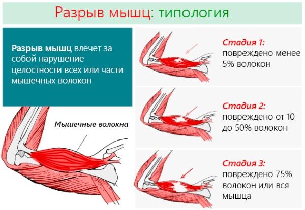 Болят ноги от колена до ступни. Причины и лечение народными средствами, медикаменты. К какому врачу обратиться