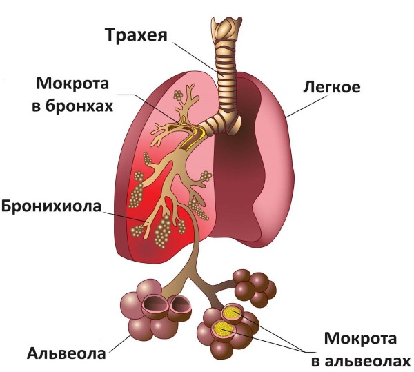 Чем лечить кашель у ребенка без температуры, влажный, сухой, затяжной, лающий, сильный, длительный, с насморком и без