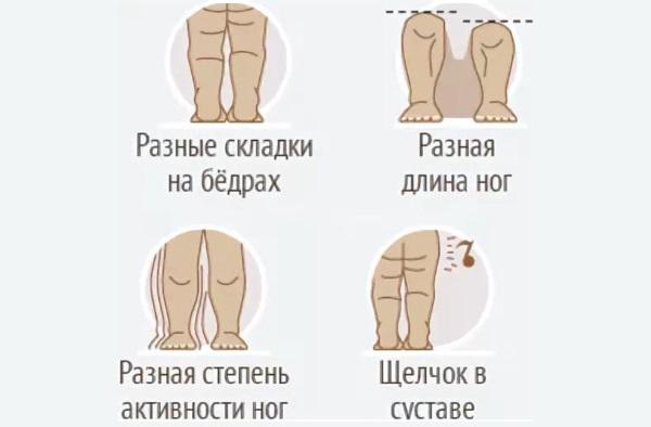 Дисплазия тазобедренных суставов у новорожденного. Симптомы, признаки, лечение