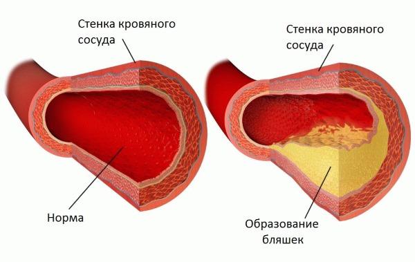 Дуплексное сканирование сосудов головы и шеи, головного мозга. Что это такое, что показывает, как делается. Цена, где сделать