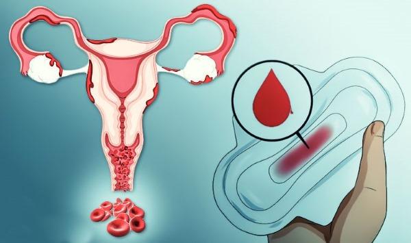 Эмболизация маточных артерий при миоме матки. Что это такое, осложнения, противопоказания. Цена и отзывы пациентов