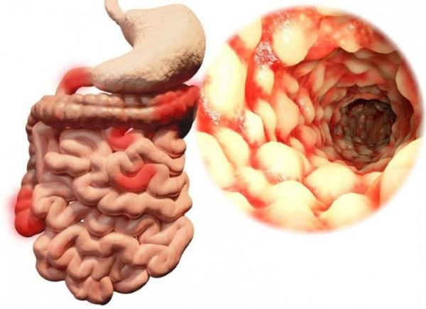 Энтерит. Симптомы и лечение у взрослых народными средствами, лекарства, диета. Признаки хронический, парвовирусный, инкубационный период